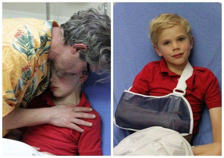 Christian and Richy Broken Arm